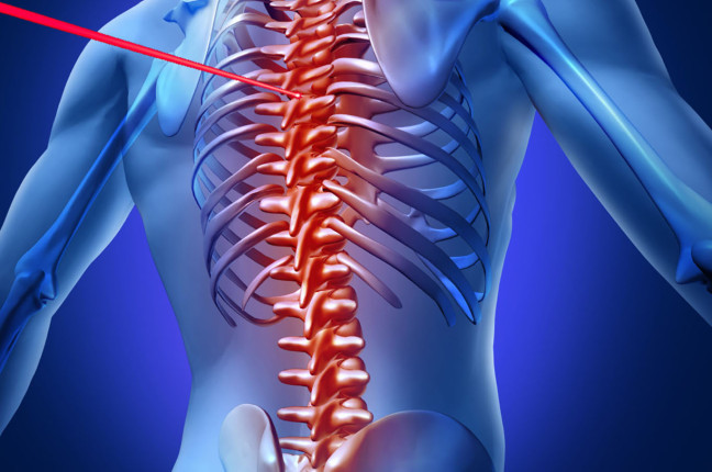 Laser spine surgery for spinal stenosis