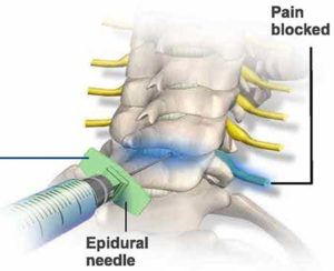 Caudal Epidural Technique