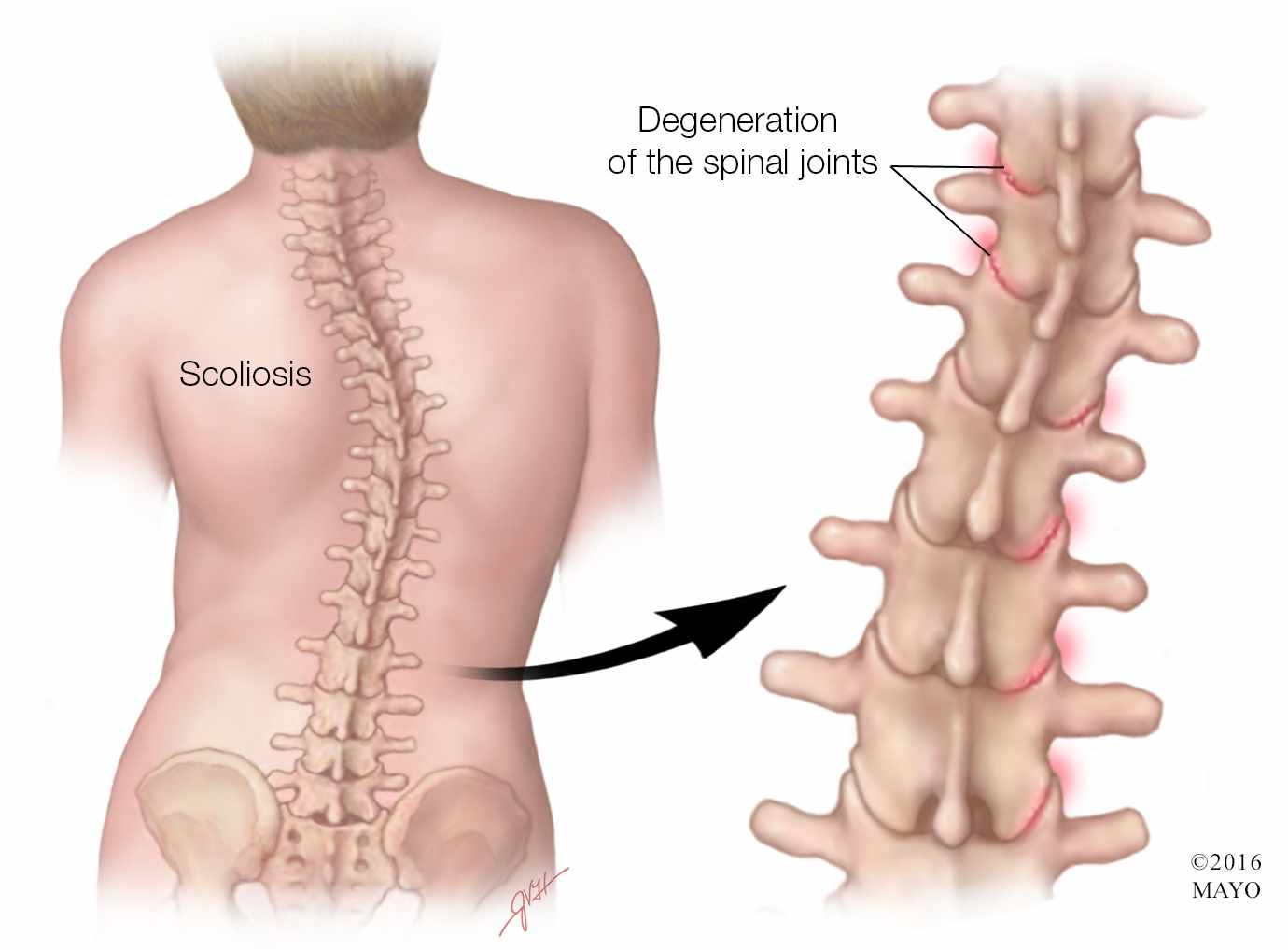 Why do I have scoliosis?