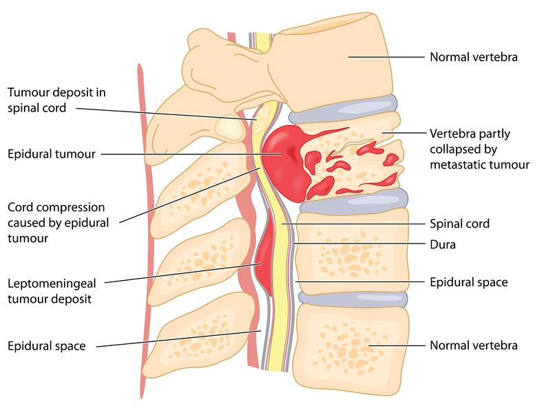 Treating cancer of the spine
