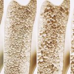 How to diagnose osteoporosis?