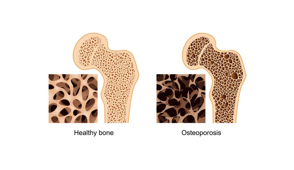 Why did I develop Osteoporosis?