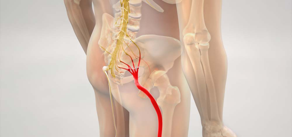 rapidly relieve sciatica