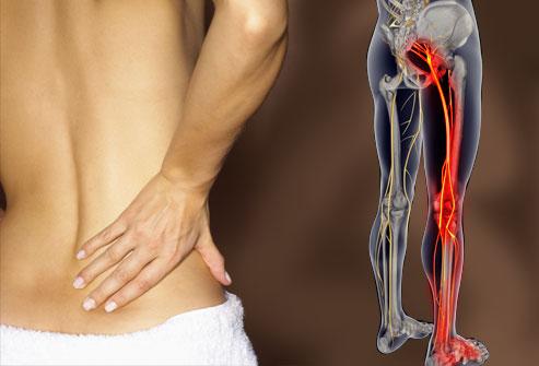 5 ways to rapidly relieve sciatica