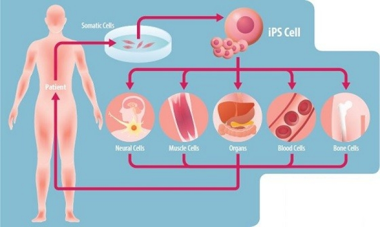 Stem cells transplant