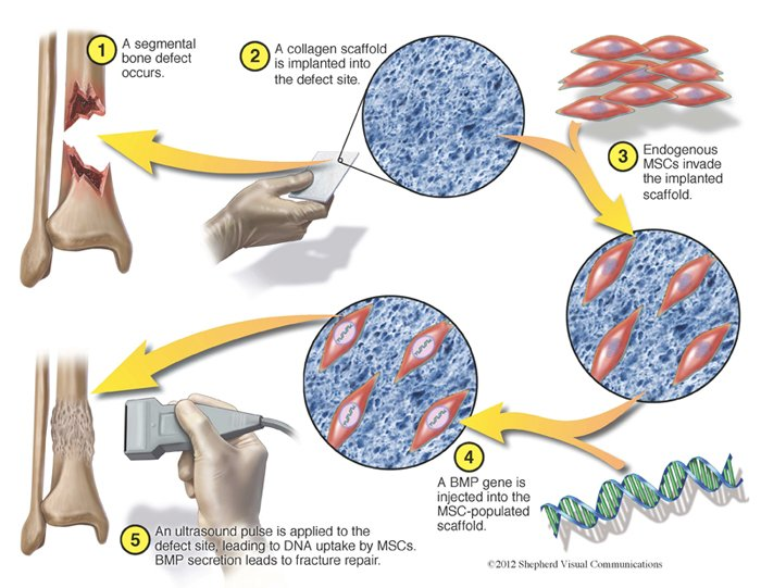 How can stem cells repair bone damage or injury?
