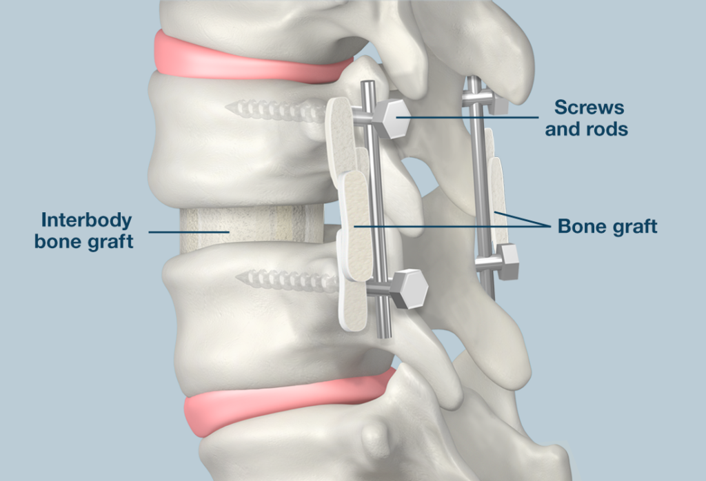 What is a Posterior Lumbar Interbody Fusion (PLIF)?