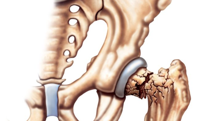 What are the risks of osteoporosis?