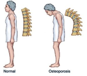 Complications of osteoporosis