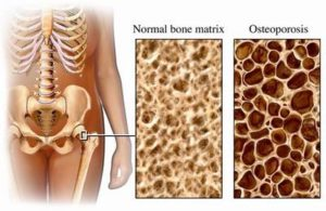cause of osteopenia