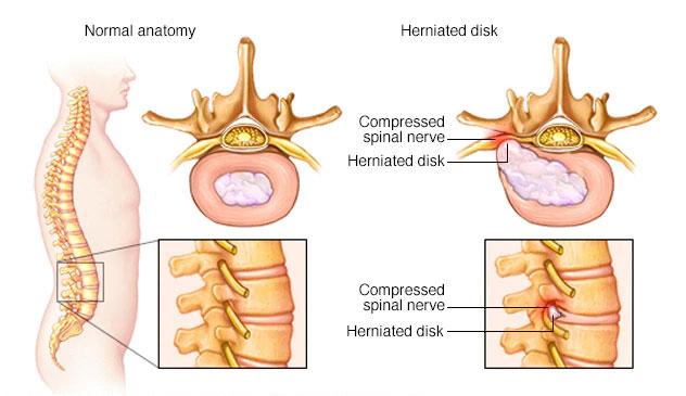PLDD laser discectomy