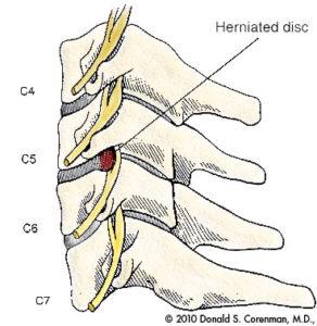 Cervical Disc Hernia
