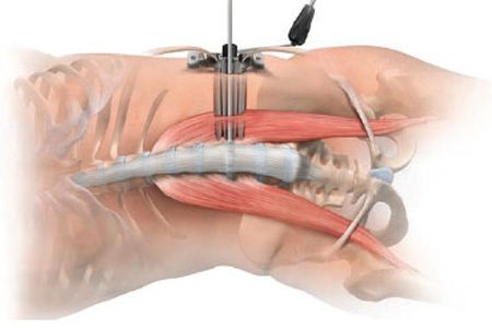 What is Extreme Lateral Lumbar Interbody Fusion (XLIF)?