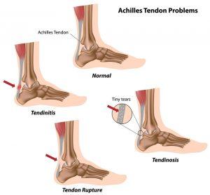 How can stem cells repair tendon injuries