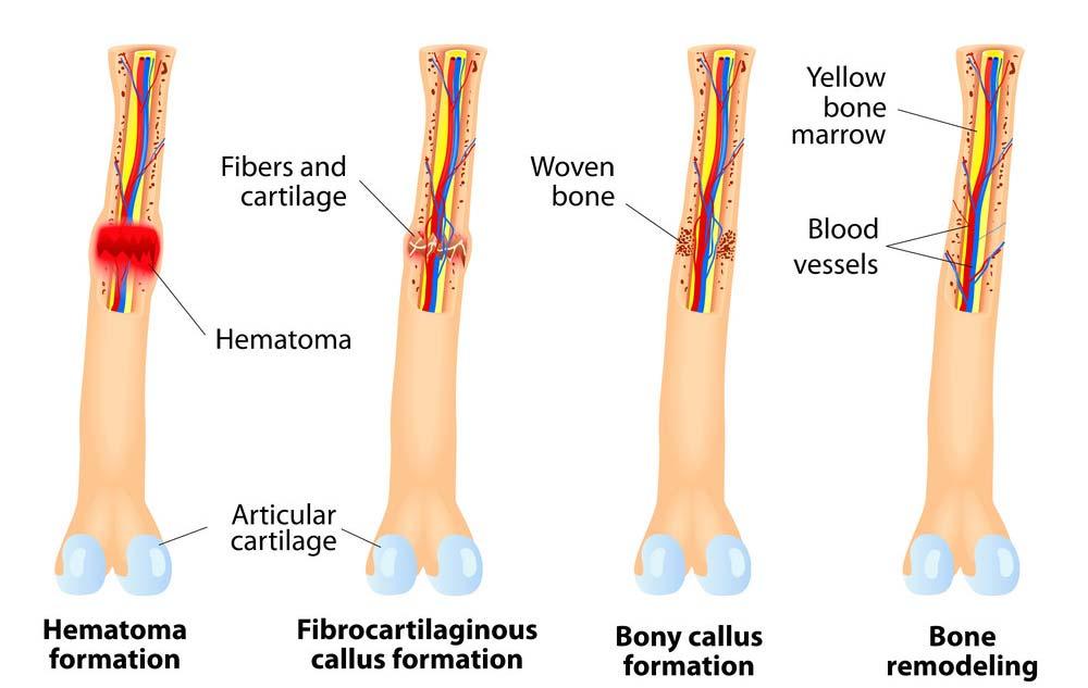 How can stem cells repair bone damage or injury