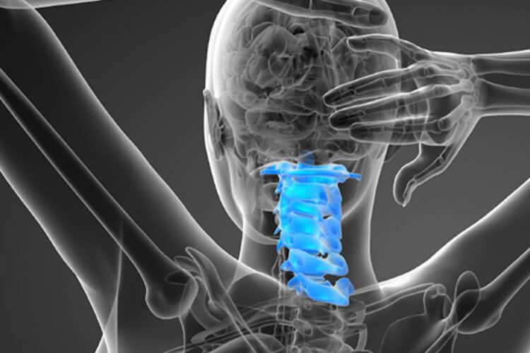 Cervical fusion surgery