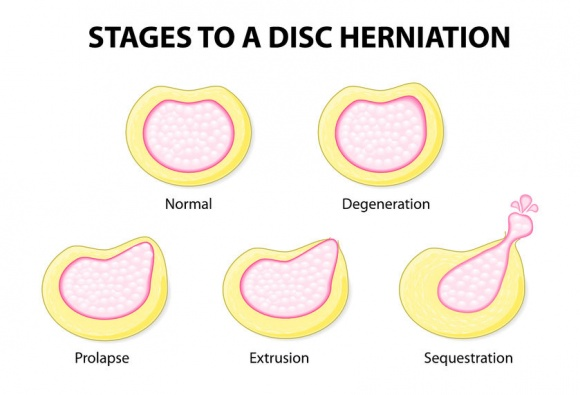 What is a disc prolapse?