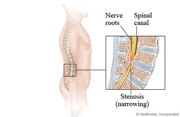 Surgical treatment of spinal stenosis