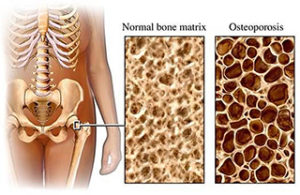 treat Osteoporosis