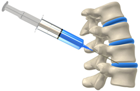 Radiation Dose Practice Audit of 6,234 Fluoroscopically-Guided Spinal Injections.